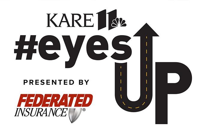 eyes up kare 11